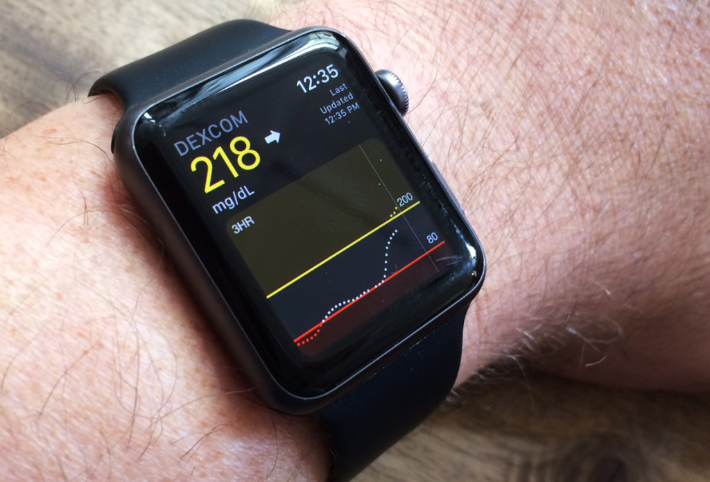 Blood sugar info on my Apple Watch