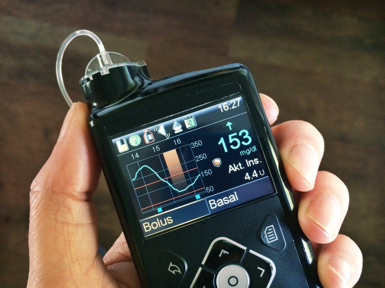 Pumpe vs. Pen - Teil 2: Was spricht für und gegen eine Insulinpumpe?